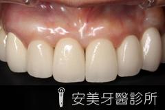 安美植牙,植牙代替假牙