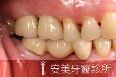 安美牙醫專業植牙